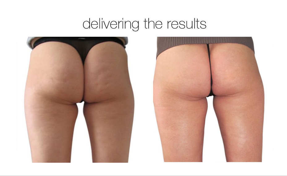 cellulite-reduction-03